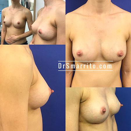 Prothèse Mammaire Anatomique